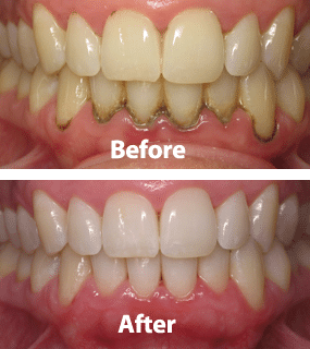 Laser Periodontal Disease Austin Laser Dentist Helen