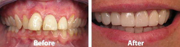 Porcelain- Veneers Before and After Photos 2