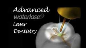 Waterlase Dental Laser by BIOLASE at Austin Laser Dentisty