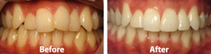 invisalign-before-after-001
