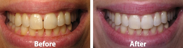 invisalign-before-after-002