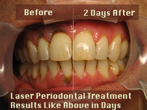 laser-periodontal-before-af