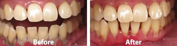 periodontalba001