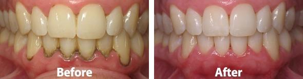 periodontalba002