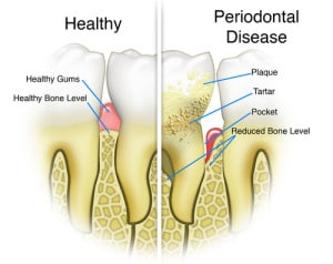 110103-gum disease illustration