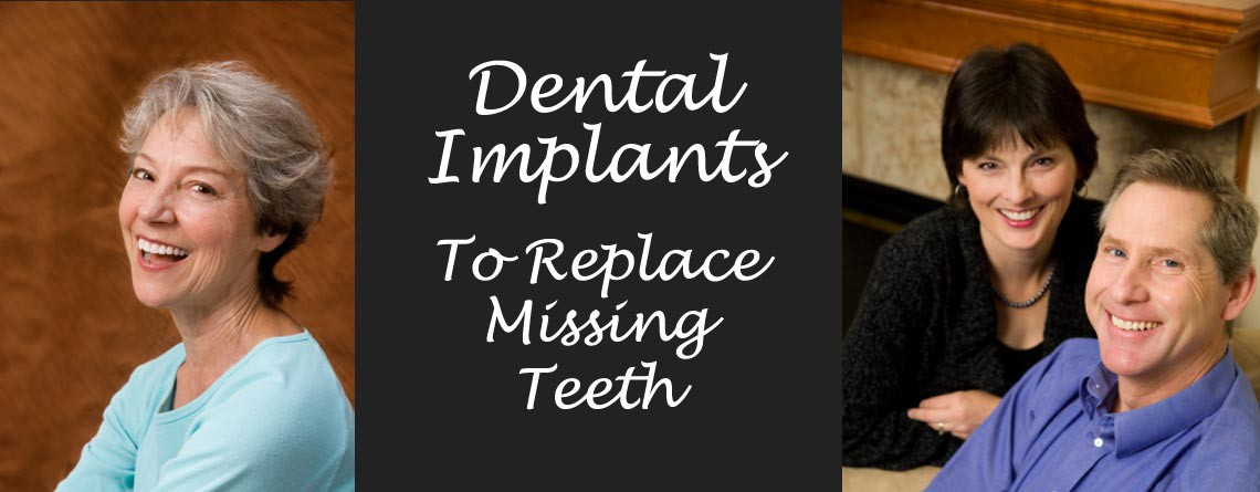 Austin Dental Implants – Permanently Replacing Missing Teeth