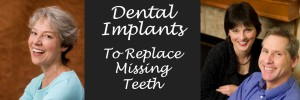 Dental-Implants-FE-1140x445