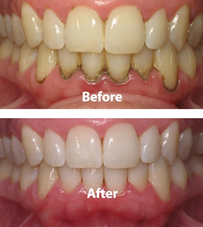 periondal disease Information on gum disease and how to prevent and treat it.