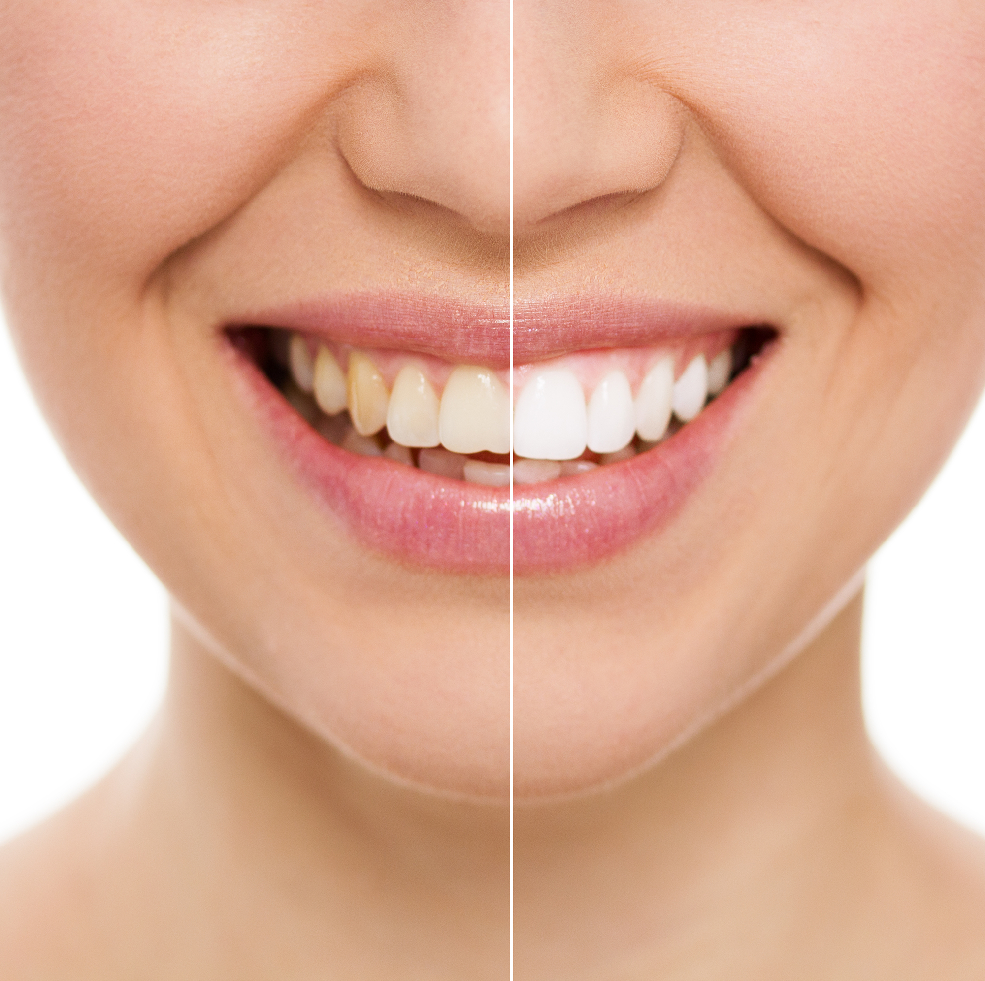 Laser Teeth Whitening Vs Over The Counter Bleaching Austin Laser